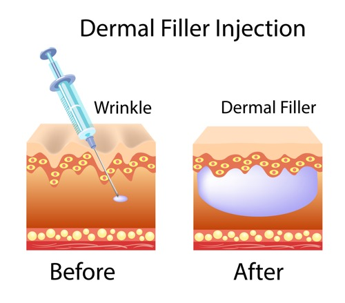 how dermal fillers work melbourne skin clinic